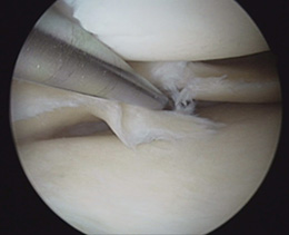 Arthroskopie bei Meniskusriss